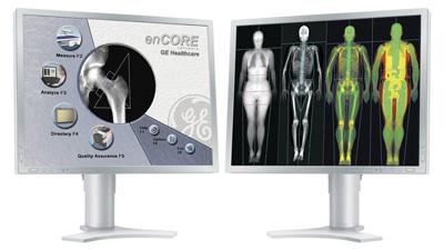 骨密度測定モニター